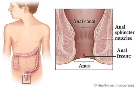 anal tear medical jpg 368x240