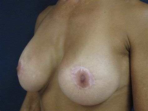 Breast lifts in tucson hurst plastic surgery jpg 2816x2112