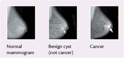 Mammograms to diagnose breast cancer cancer research uk jpg 460x216
