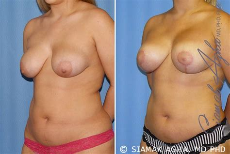 breast augmentation surgeon orange county jpg 791x531