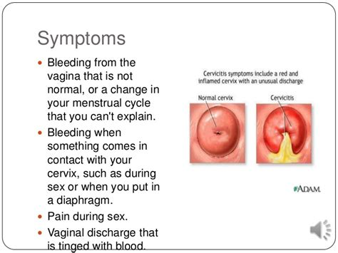 When bleeding during sex is nbd and when its a problem self jpg 728x546